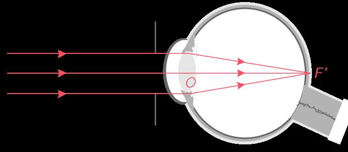 Formation par l'œil de l'image d'un objet situé à l'infini