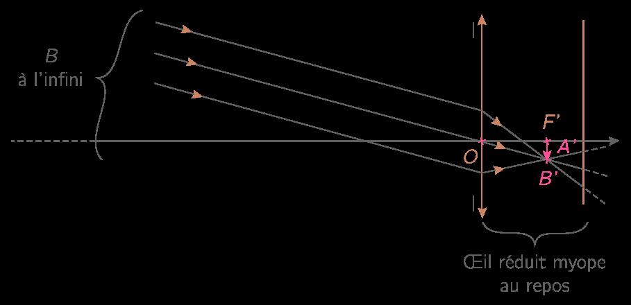 Formation de l'image A'B' d'un objet AB à l'infini par l'œil myope au repos