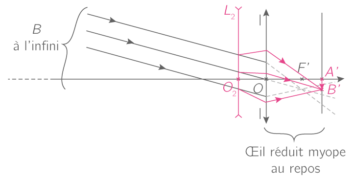 Correction de la myopie par une lentille divergente