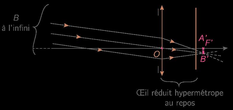 Formation de l'image A'B' d'un objet AB à l'infini par l'œil hypermétrope au repos