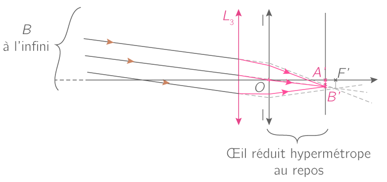 Correction de l'hypermétropie par une lentille convergente