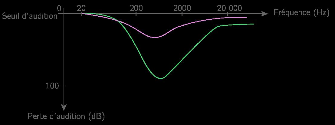Exemple d'un audiogramme