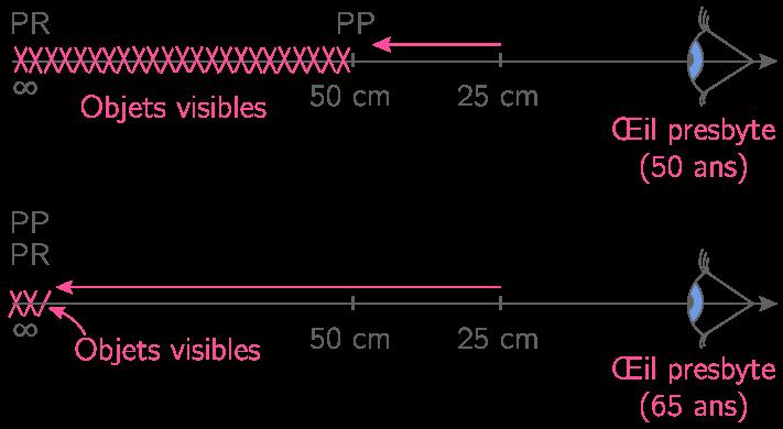 Un exemple d'évolution du domaine des objets visibles avec l'âge.