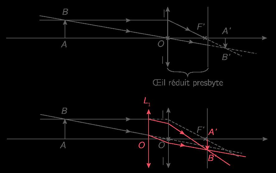 La lentille convergente L1 permet de commencer à faire converger les rayons  ce qui permet de ramener A B  sur la rétine. 64cff57e035b