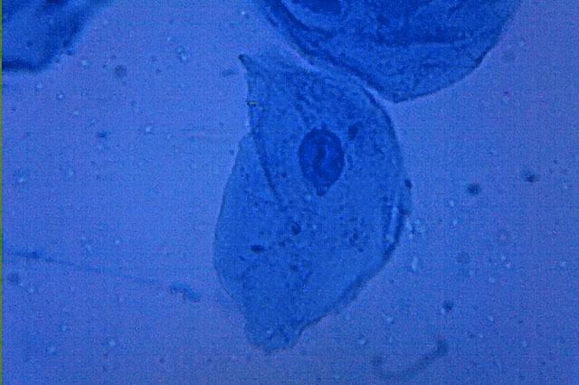 Photographie en microscopie optique de cellules buccales humaines (longueur : 0,01 mm)