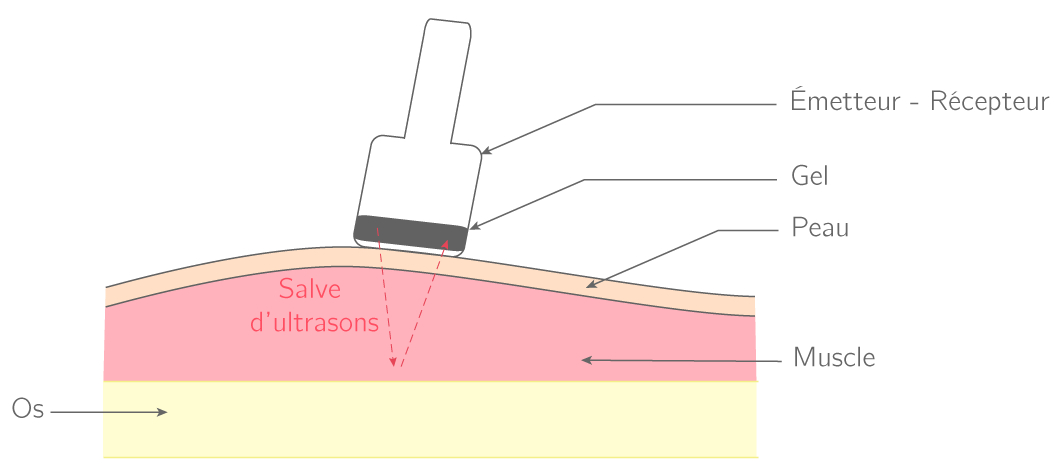 Échographie