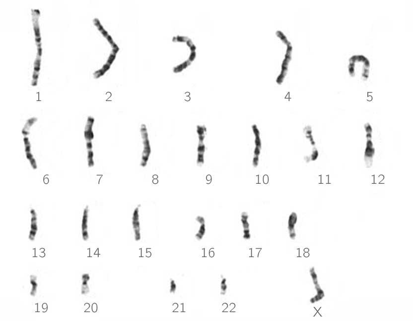 Caryotype d'un gamète portant ici le chromosome X