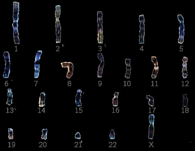Caryotype d'un ovule portant ici le chromosome X