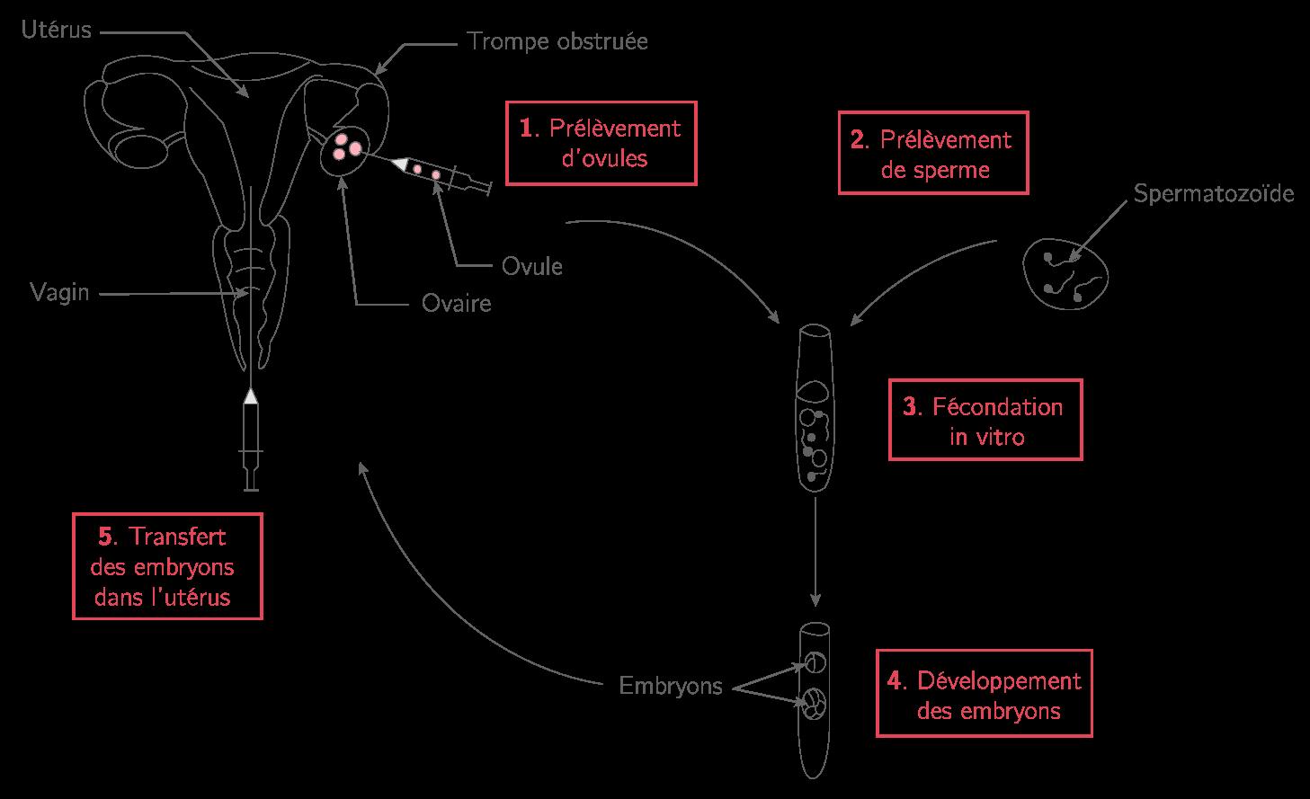 La fécondation in vitro et transfert d'embryon (FIVETE)