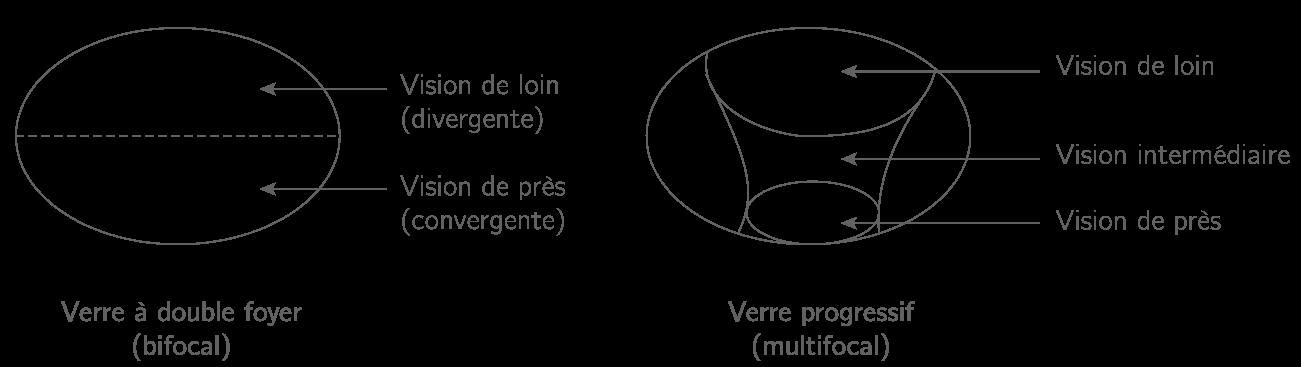 Myopie Verre Divergent Ou Convergent Optique Gomtrique