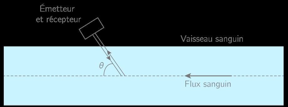 Figure 3. Principe de la mesure d'une vitesse d'écoulement sanguin par effet Doppler (échelle non-respectée)