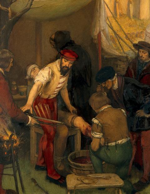Ambroise Paré réalisant une amputation
