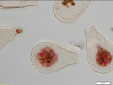 Des amibes, observation au microscope optique