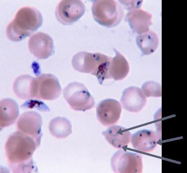 Plasmodium (anneaux pointés par les flèches) parasitant des hématies humaines