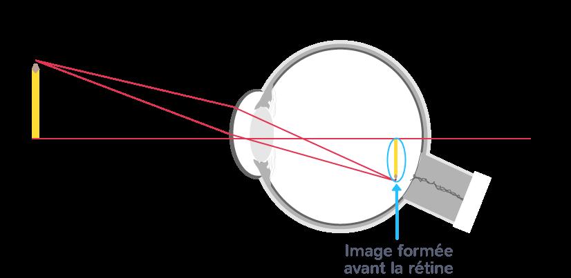 œil myope image avant rétine