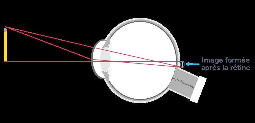 œil hypermétrope image après rétine