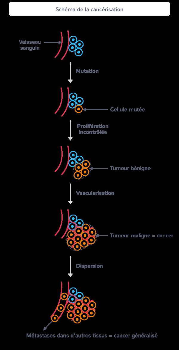 caractéristiques cancer développement tumeur vascularisation maligne métastases