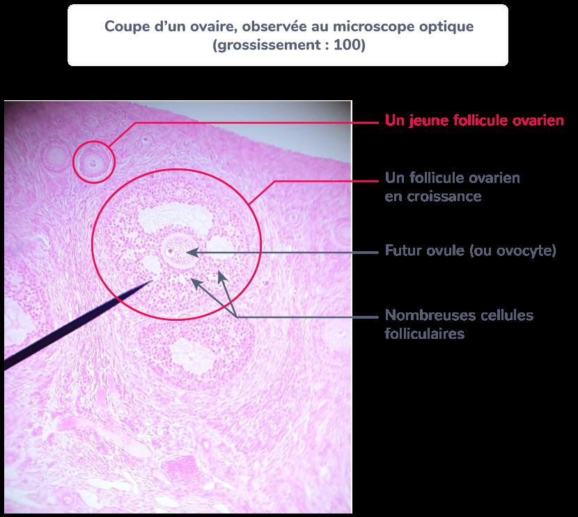 définition follicule ovarien