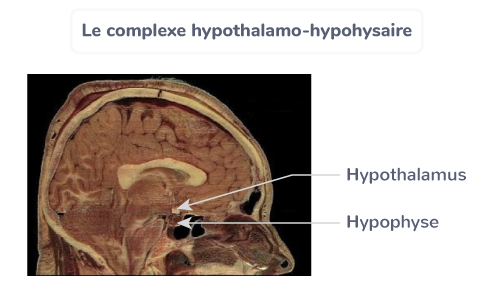 stress complexe hypothalamo-hypohysaire
